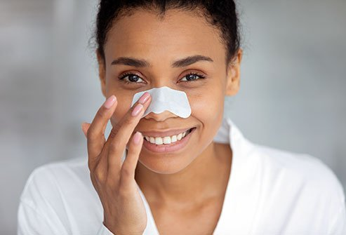 Blackheads (comedones) are a form of acne.