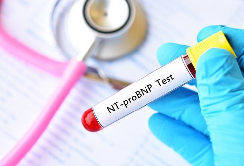 A high BNP blood test result may indicate worsening heart failure. BNP is a protein that increases in the presence of heart failure.