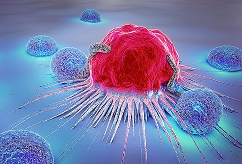 Cancer means an uncontrolled growth of cells in the body.