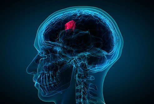 Life expectancy for brain cancers such as anaplastic astrocytoma is often expressed in 5-year survival rates, that is, how many people will be alive 5 years after diagnosis. Survival rates can vary widely by age, with younger people tending to have a better outlook than older people.