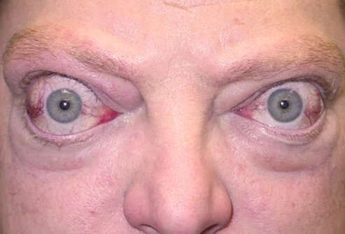 Often a sign of a medical problem, bulging eyes can be caused by various health issues.