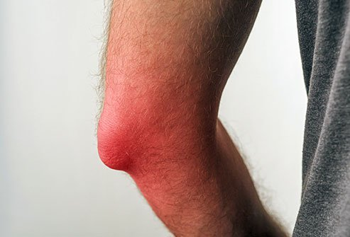 The best way to treat bursitis is to let the inflamed joint or limb rest, or you could prevent it from healing. Rest your body and avoid heavy activity, apply ice, alternate with a heating pad or warm compress, take over-the-counter (OTC) pain relievers, avoid tobacco smoke as it delays tissue and wound healing.