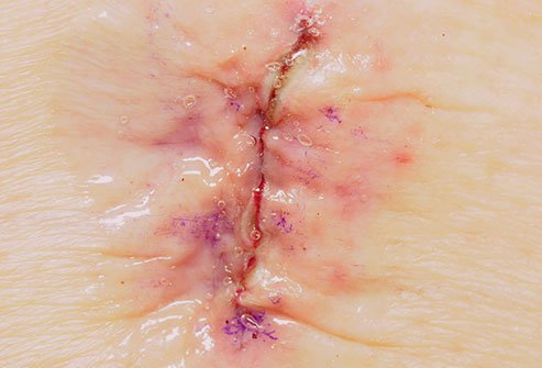 Dermabond may be used to close small wounds.