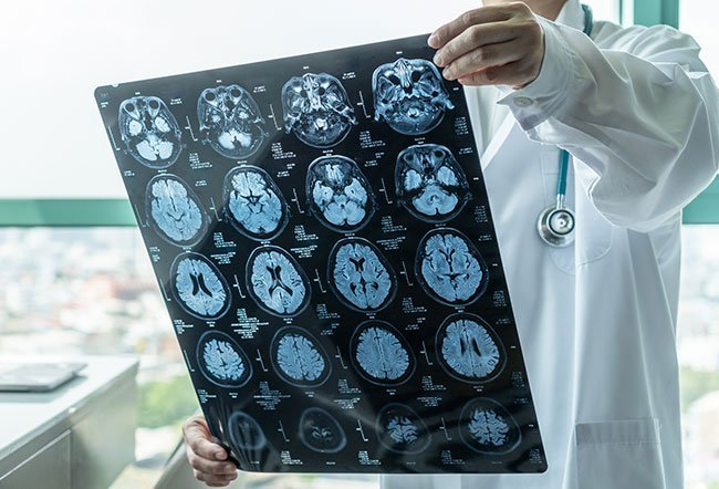 Brain damage may be caused by ruptured or blocked blood vessels or a lack of oxygen and nutrient delivery to a part of the brain. Brain damage cannot be healed, but treatments may help prevent further damage and encourage neuroplasticity.
