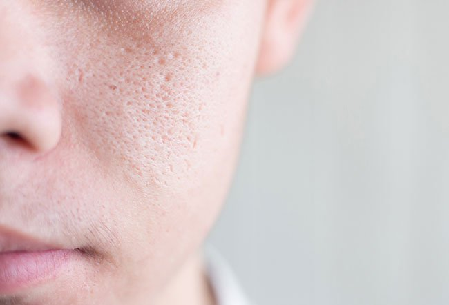 Pore size is genetically determined, so you can't actually shrink pores. You can use pore-minimizing products, cooling treatments and products containing vitamin B3, niacinamide, picolinamide, zinc oxide and collagen to attempt to minimize the appearance of pores.