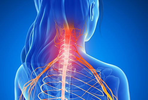 Cervical laminectomy involves surgically removing part or parts of the neck vertebrae to relieve nerve pressure and neck pain.