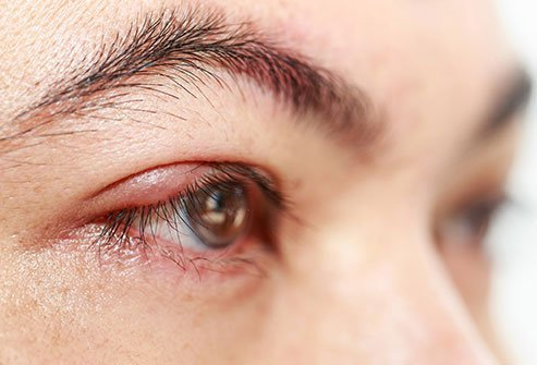 The two types of stye are hordeolum and chalazion.