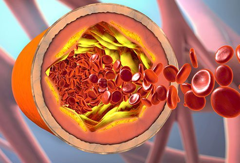 Cholesterol is a waxy substance found in all the cells of the body.