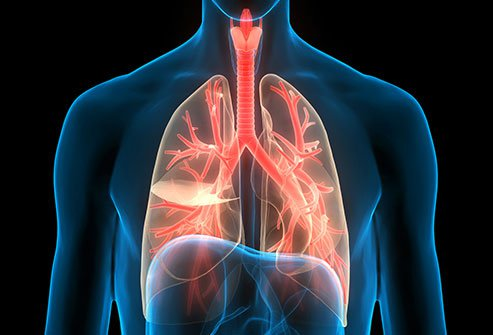 Bronchitis refers to the inflammation of the air-carrying tubes in the lungs