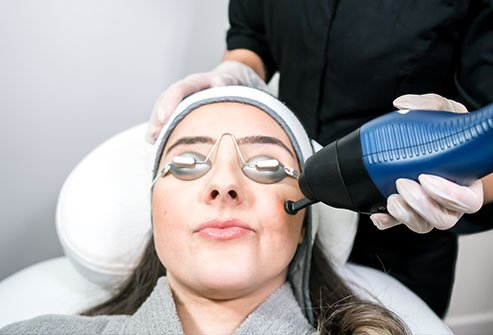 CO2 laser skin resurfacing is a procedure involving the use of carbon dioxide (CO2) and a skin surface-removing laser (ablative laser) to remove scars, warts and deep wrinkles.
