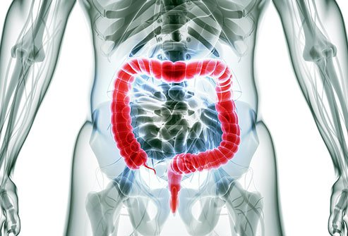 Colon resection surgery (colectomy) removes a length of intestine that is diseased or dead, and then re-connects the severed ends to each other or to an ostomy in the abdomen attached to a colostomy bag to catch feces.