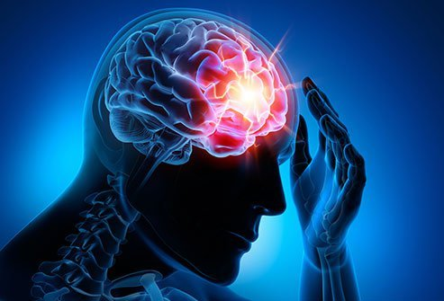 A mild concussion may not need treatment. Most concussions get better on their own over time. A mild concussion may last only hours to seven to 10 days. More severe concussions may last weeks to months.
