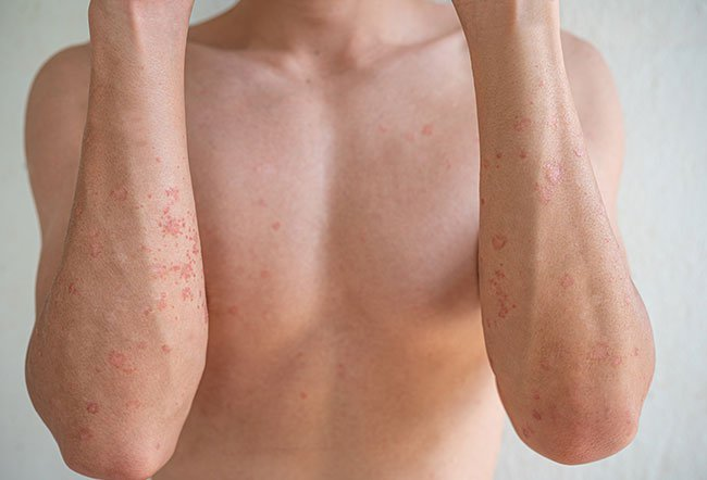 The word dermatitis refers to inflammation (redness and swelling) of the skin.