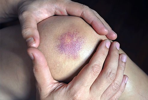 'Contusion' is the medical term for 'bruise.'
