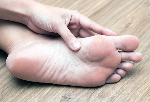 Calluses are thickened areas of skin that grow due to irritation. Get rid of calluses by soaking, filing, moisturizing and protecting your skin.