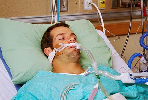 Mechanical ventilation or breathing machines are part of doctors' arsenal to treat COVID-19 coronavirus disease in patients with the worst lung symptoms.