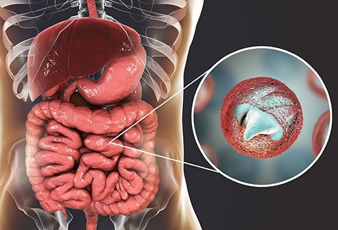 Cryptosporidiosis is an infection of the gut (small intestine) caused by microbes