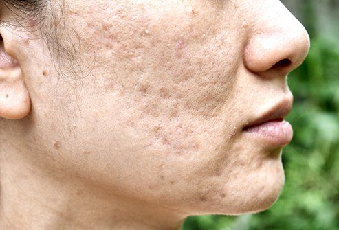 Cystic acne may cause scarring, giving the skin a pitted look.