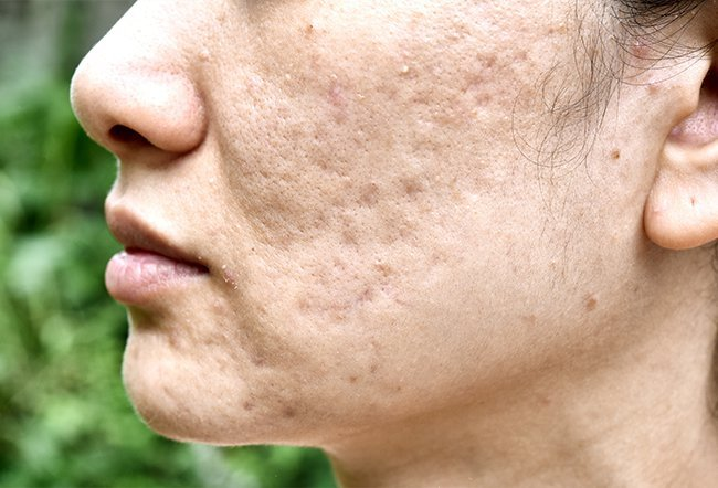 Some lifestyle changes can cause acne or worsen the skin condition such as pregnancy, stress, diet, medications, and cosmetics.