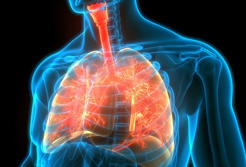 The life expectancy of patients with cystic fibrosis has improved over the last 50 years