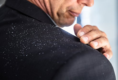 Dandruff, or scalp seborrhea, is often caused by a fungus, but also can have autoimmune or other origins.