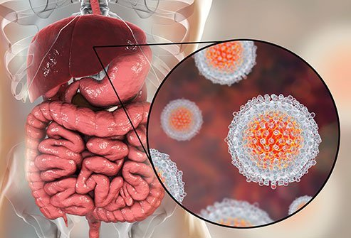 Hepatitis C (Hep C) is a type of viral infection attacking the liver caused by the Hep C virus (HCV).
