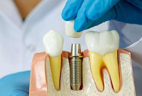 Dental implants are a costly procedure and may not always be covered by insurance providers.