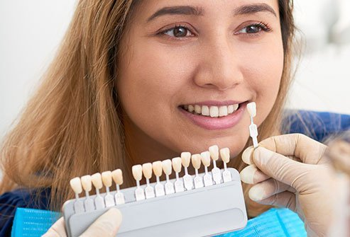 Dental veneers cover the front part of your teeth and are designed to appear natural.