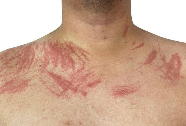 The exact cause of dermatographia is unknown.