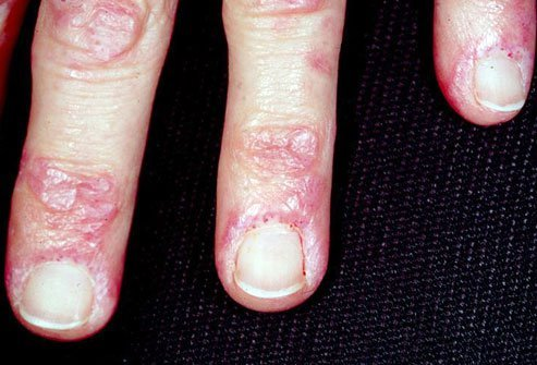 Myositis means swelling and redness of the muscles.