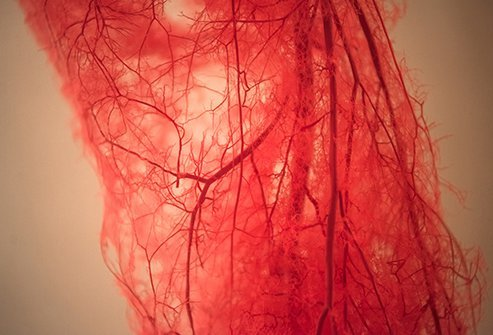 Disseminated intravascular coagulation (DIC) is a blood clotting disorder.