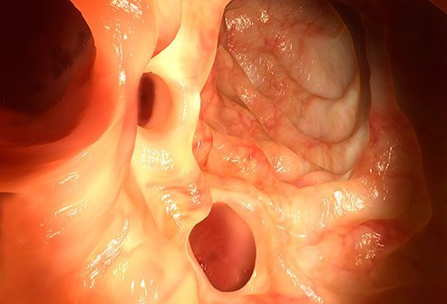 Diverticulitis can go away, but it should be evaluated by your doctor.