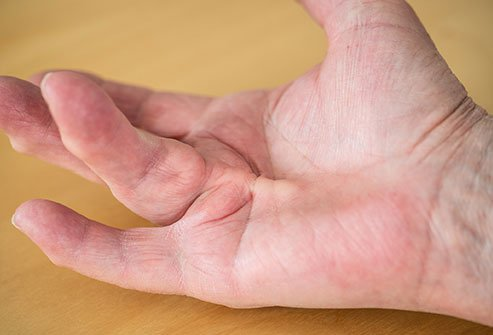 Dupuytren's contracture can prevent full extension of the affected finger.