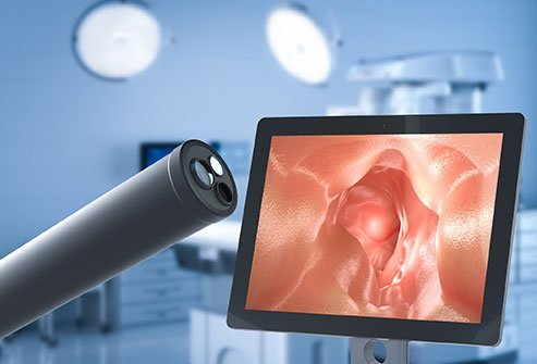 Pictured is a lighted camera called an endoscope used for the EGD (upper endoscopy) diagnostic procedure.