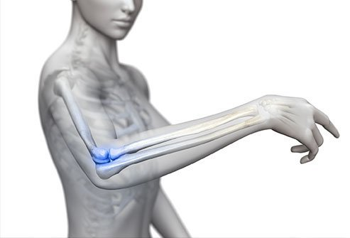 Signs and symptoms of a dislocated elbow include a visible deformity, pain, and swelling.
