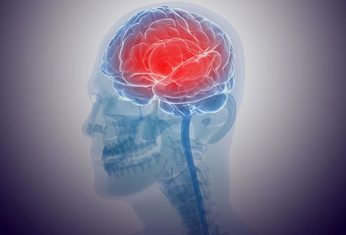 Picture of Encephalitis (Inflammation of the Brain)
