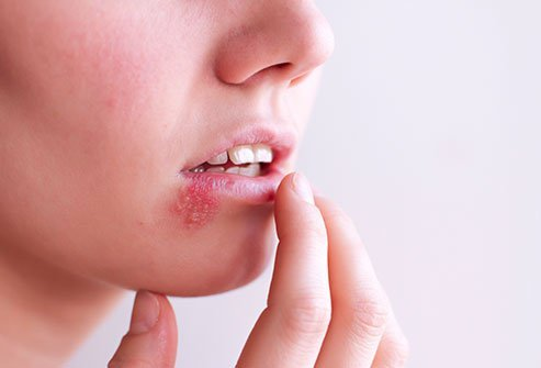 EBV can cause mouth sores.