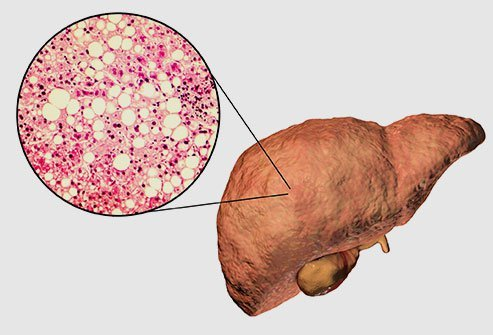A fatty liver (hepatic steatosis) is a buildup of fats in the liver caused by alcohol-related fatty liver disease or nonalcoholic fatty liver disease. Most people show no signs or symptoms, but symptoms can include tiredness and aches in the upper right side of the abdomen.
