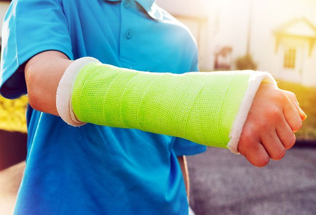 Growth plates are the areas of new bone growth in children and teens. Bone fractures in children heal quickly as compared to adults, but fractures of the growth plate may require several weeks to heal.