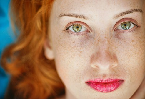 Freckles On Face & Body: Causes, Types & Mole vs. Freckle