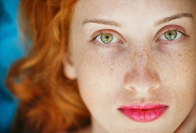 are beauty marks and freckles the same thing