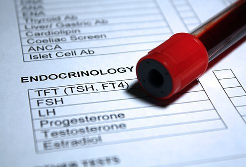 FSH levels obtained from a blood or urine test help doctors find causes of fertility problems.