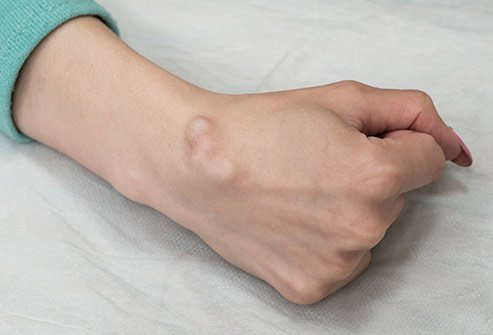 It takes between two to eight weeks to recover from ganglion cyst removal.