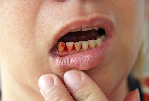 Gums that bleed easily during flossing or brushing is a sign of gum disease (gingivitis).