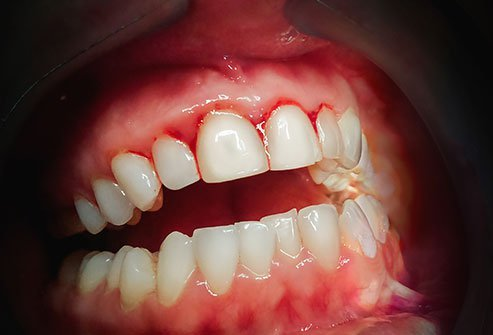 Gingivitis is the initial stage of periodontal disease. If gingivitis goes untreated, it may develop into periodontal disease.