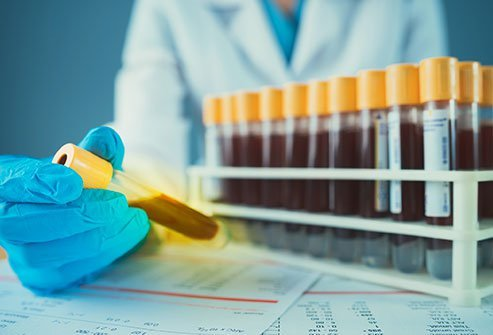 The golden blood type or Rh null blood group contains no Rh antigens