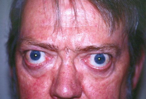 Bulging eyes can be a sign of Graves' disease.