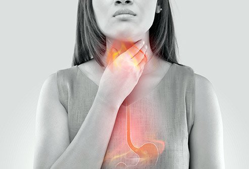 Heartburn refers to the burning sensation in the chest