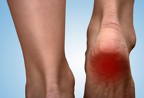 Heel pain has a variety of causes but plantar fasciitis is the most common one.