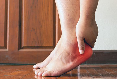Heel spurs are pointed, bony outgrowths of the heel that cause soft-tissue inflammation.